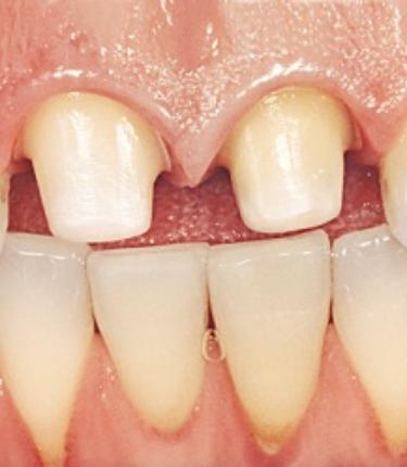Studio Dentistico Schenardi - Dente Limato
